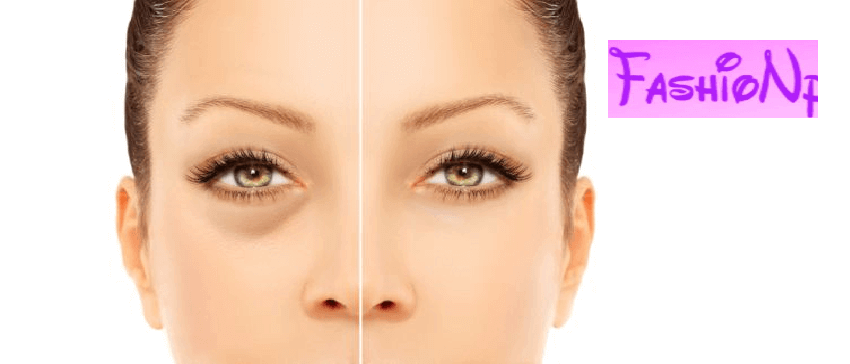 Seven Natural Remedies For Remove Are Dark Circles